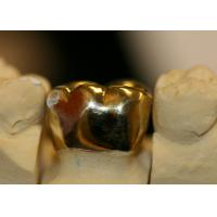 Fine Protection High Noble Metal Crown , Metal Crown Tooth Tooth Reomoved Less