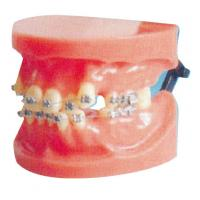 Dislocation Fixed Orthodontic Model For Medical College And Dental Hospital Training