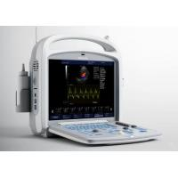 Clear Layers Of Blood Flow Frame Frequency RAM Color Doppler Machine With High Resolution